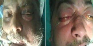 कोरोना से ठीक हुए मरीजों की आंख, नाक और जबड़े में हो रहा ख़तरनाक संक्रमण